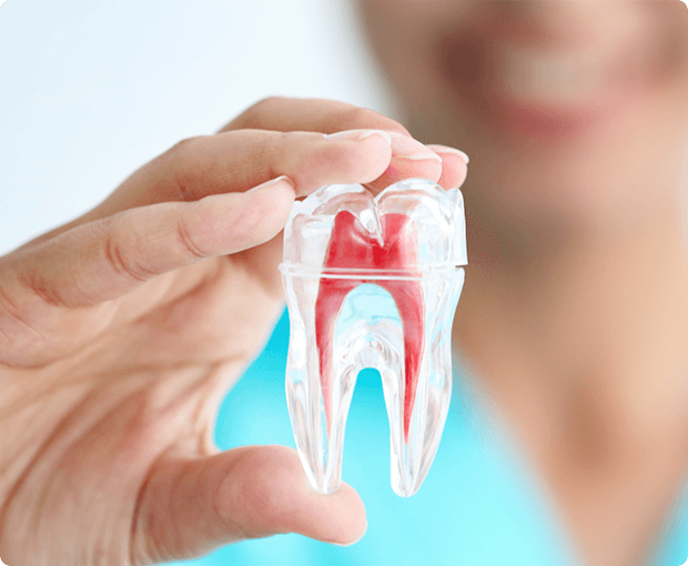 Root Canal Thornhill
