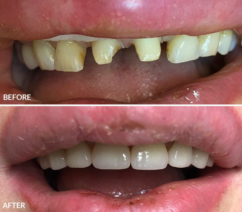 All-ceramic (zirconia with porcelain) crowns and Veneers