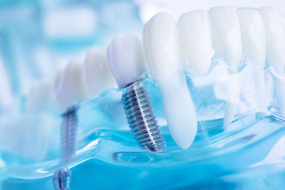 Dental Implants in Ontario