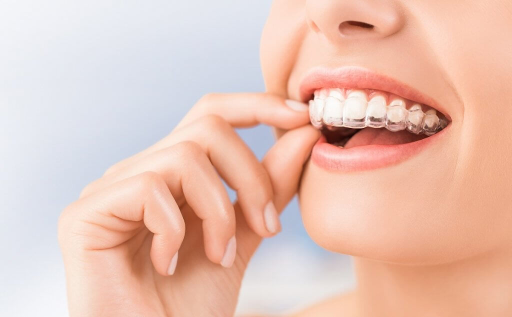 What You Should Know Before Getting an Invisalign?