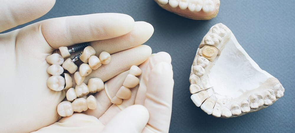 Full Mouth Reconstruction Benefits, Cost, Procedures
