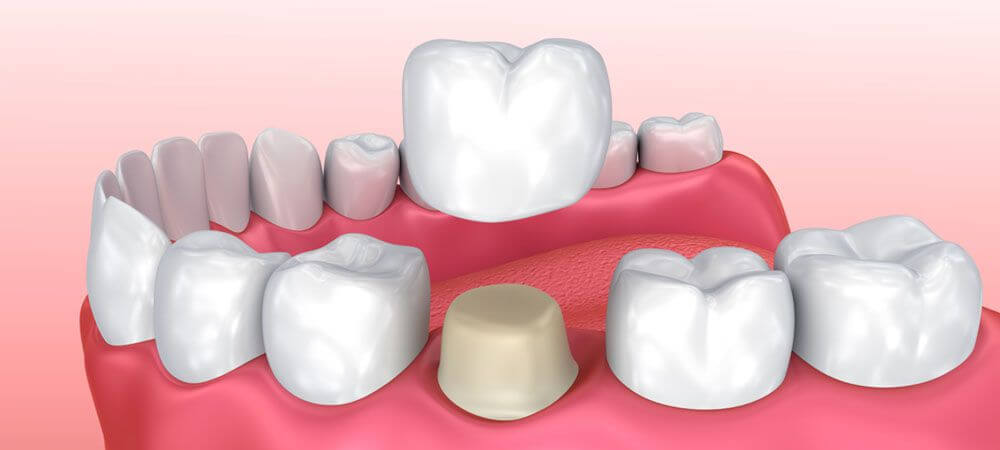 Dental Crowns: Types, Cost, Procedures, Advantages ...